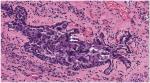 Lesiones en el epitelio