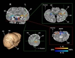 La nueva técnica ha permitido comenzar a desvelar algunos de los misterios del cerebro de delfín. (Foto : Equipo de Gregory Berns, Universidad Emory)