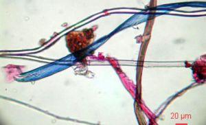 Imagen de microfibras encontradas en el medio marino. /M. B.